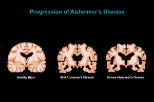1 Alzheimers Disease - Poseidonia Healthcare - Gallery