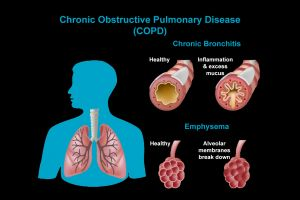1 - COPD - Explainer - Poseidonia Healthcare - Galllery
