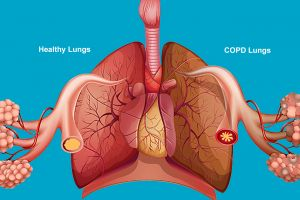 3 - COPD - Explainer - Poseidonia Healthcare - Gallery