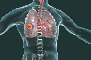 COPD - Poseidonia Healthcare -Symptoms & Causes