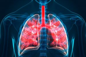 Pulmonary Fibrosis - Poseidonia Healthcare - 3