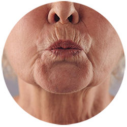Face Fillers - Poseidonia Healthcare - Perioral Lines